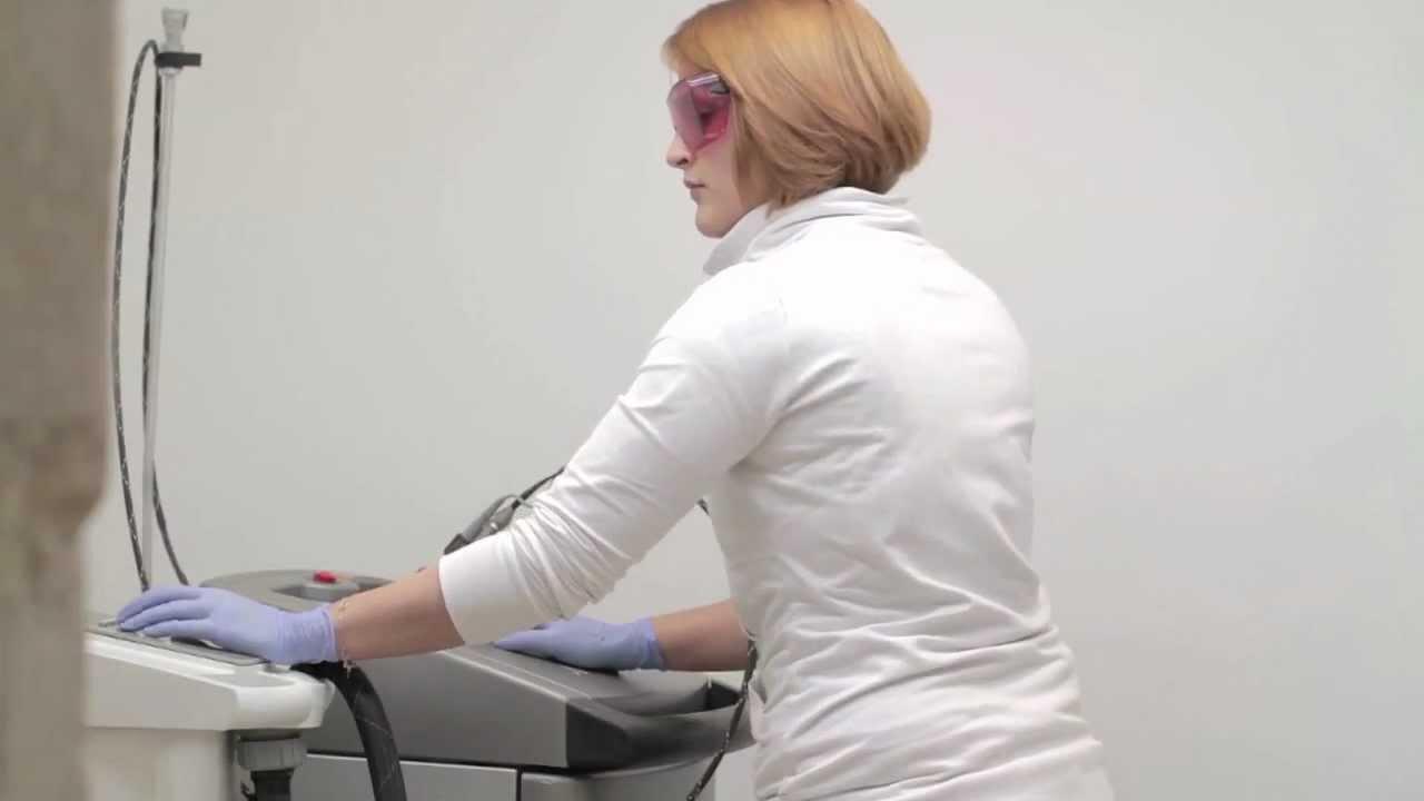 epilation laser du maillot chez la femme youtube. Black Bedroom Furniture Sets. Home Design Ideas