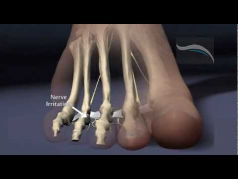 Do You Suffer From Morton's Neuroma?