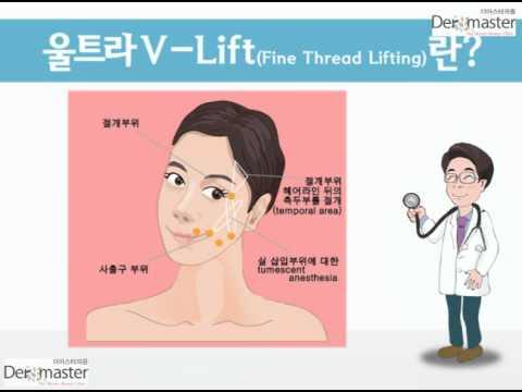 Ultra V Lift - Dermaster Dr. Kwon Han Jin