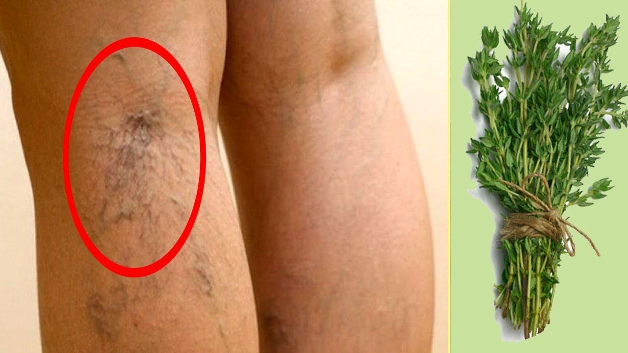 القضاء على الدوالي في 3 ايام ستحصلين على ساقين جذابتين (علاج فعال مع نتائج جيدة)