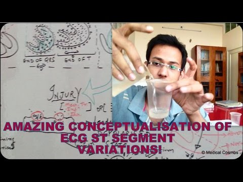 ECG/EKG Current of Injury AND ST Segment Variation