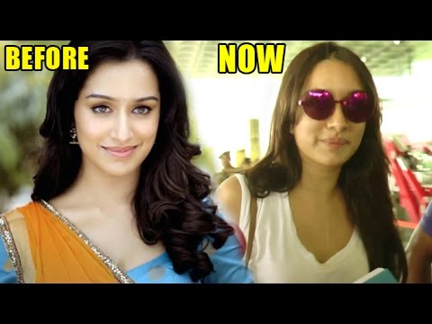 Shraddha Kapoor's Plastic Surgery Gone WRONG