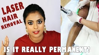 THINGS NOONE TELLS YOU ABOUT LASER HAIR REMOVAL - ON BROWN SKIN
