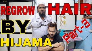REGROW HAIR BY HIJAMA CUPPING THERAPY | PART-3 | HINDI | ANI RAY