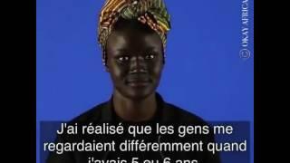 Khoudia Diop : Le blanchiment de la peau est devenu un gros probleme