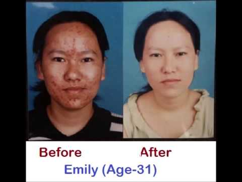 Best Acne Medication In 30-60 Days - Guaranteed!