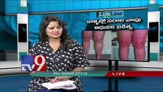 Varicose veins || Modern Treatment - LifeLine