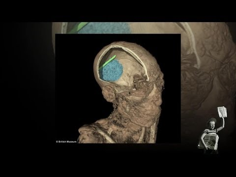 Mummy Scan Reveals Spatula Lodged In Skull