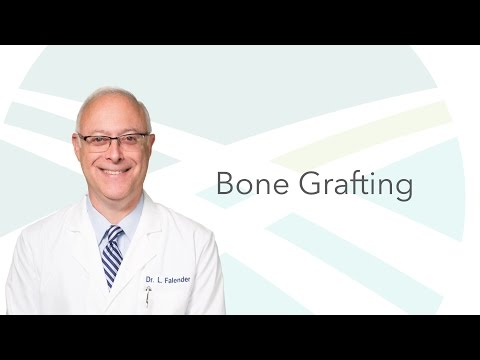 Dr. Falender on Bone Grafting Options | Indianapolis Oral Surgery & Dental Implant Center
