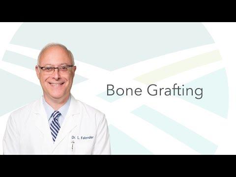 Bone Grafting Options: Dr. Falender | Indianapolis Oral Surgery & Dental Implant Center