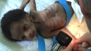 Treatment of Babies