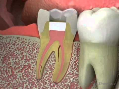 Dentist - Root Canal Retreatment
