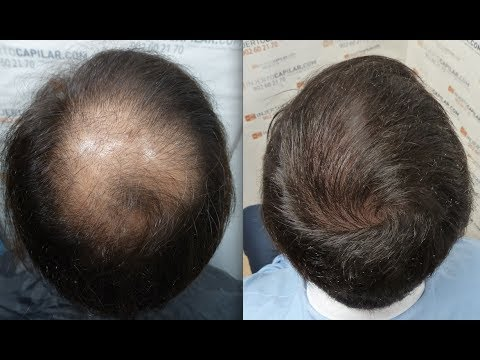 2501 FUs Hair Transplant By FUE Technique Injerto