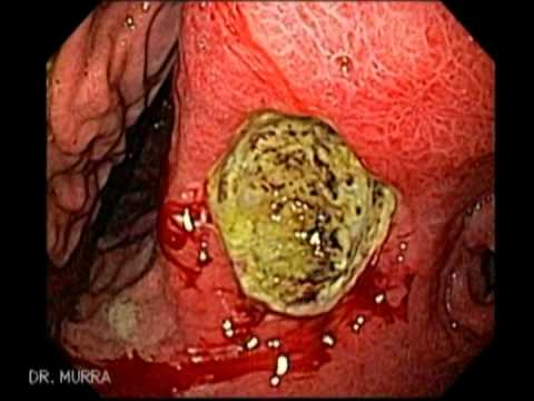 Endoscopia de Ulcera Gástrica - YouTube