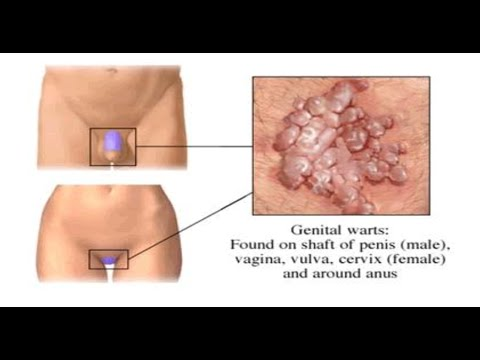 Genital Warts In Men Warts On Penis How To Get Rid Of