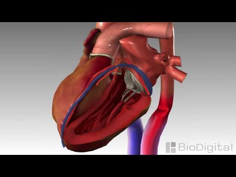 3D Medical Animation - Congestive Heart Failure