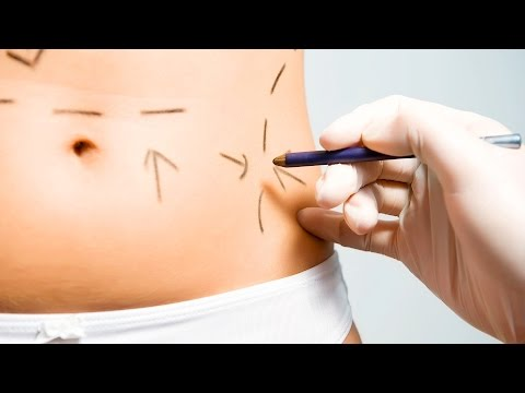 2 Main Types of Tummy Tuck | Plastic Surgery