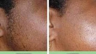 Laser Hair Removal Advice For Black Skin