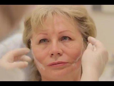 Быстрая Подтяжка Лица и Шеи. Нитевой лифтинг. Как подтянуть лицо и шею? Говорит ЭКСПЕРТ/Says Expert/