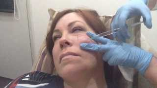 Cheek Augmentation with Juvederm Volift