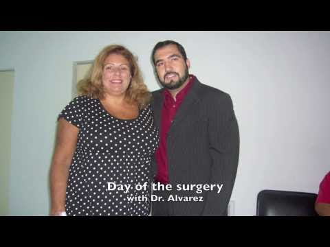 Gastric Sleeve (VSG) Sisters (Includes Before And After)
