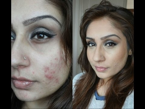 Cover ACNE the SAFE WAY foundation routine    Raji Osahn