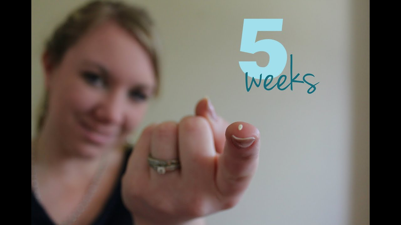 5 Weeks Pregnant - InfoBabyorg