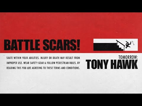 Tomorrow... Tony Hawk Breaks Down The WORST INJURIES Of His Career