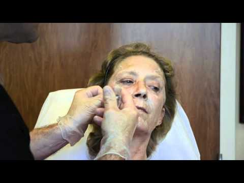 Full Face Correction with Radiesse Volumizing Filler featuring Dr. Joseph Campanelli