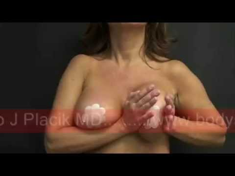Breast Massage Aka Breast Implant Exercises video