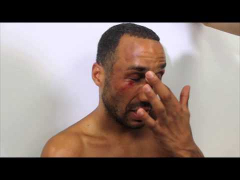 AN EMOTIONAL JAMES DeGALE WINS IBF WORLD TITLE & NOW LOOKS FOR UNIFICATION FIGHT WITH ANDRE WARD