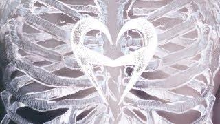 Watch Heartist Black Cloud video