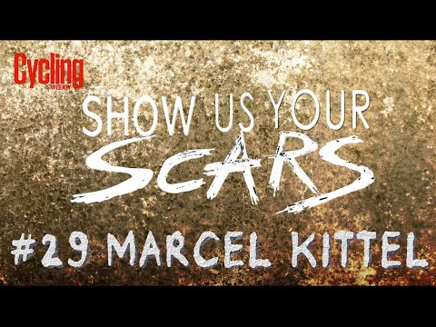 Show us your Scars: Marcel Kittel | Cycling Weekly
