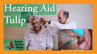 Ear Foreign Body (Hearing Aid) Removal | Auburn Medical Group