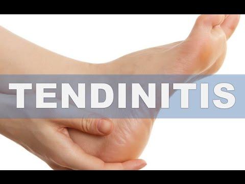 Los síntomas del hongo sobre las uñas de las manos
