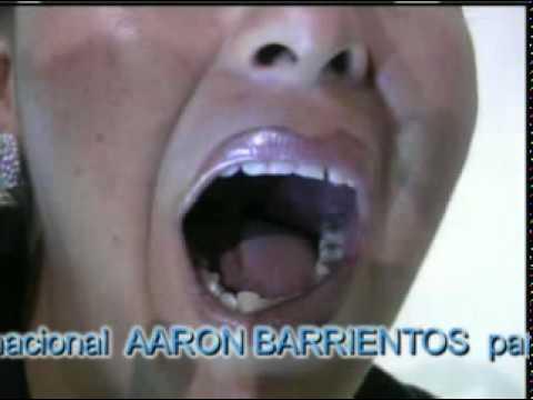 Aron Barrientos; A 3 Personas Dios les rellena las muelas de oro.