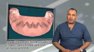 د.حسام عاشور - تعويض الأسنان اذا فقدت كامله - الحل الذهبى - التركيب الثابت كاملا بالزراعة