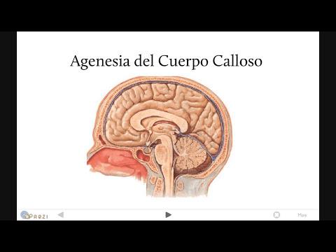 Malformaciones congénitas del Sistema Nervioso.wmv