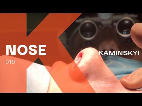 Новая техника пластики спинки носа - LET DOWN - New technique of the dorsum correction