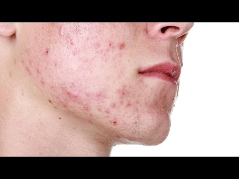 How to Shave Acne-Prone Skin | Shaving Tips