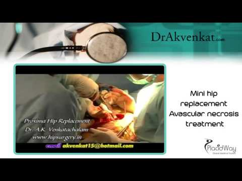 Mini hip replacement - Avascular necrosis treatment in India