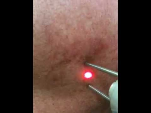 Laser skin treatment Sydney - pigment , scars, acne , veins