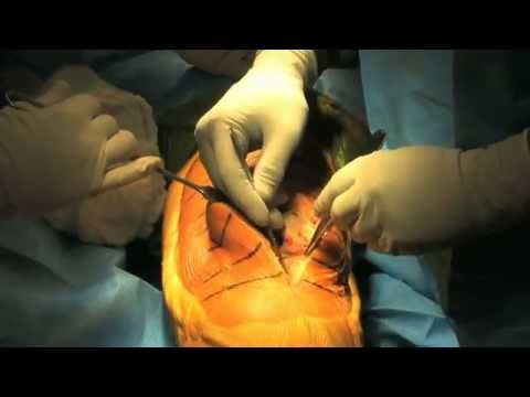 Total Knee Replacement Surgery  2011 - HD