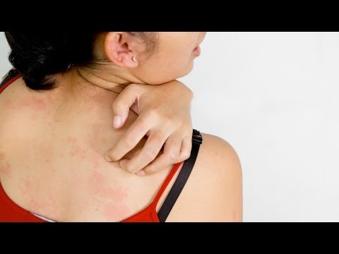 Is Itchy Skin Ever a Sign of Skin Cancer?