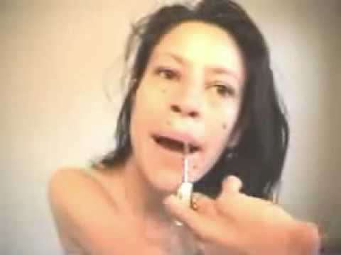Girl wirth Thalidomide deformed arms putting on make up Video