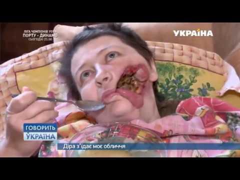 Дыра съедает мое лицо (полный выпуск)   Говорить Україна