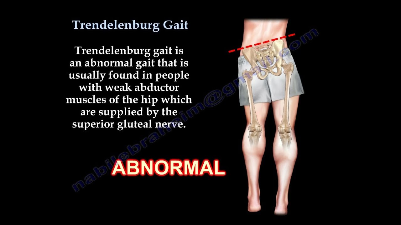 Trendelenburg Gait - Everything You Need To Know