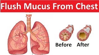 10 Remedies For Clearing Mucus From Your Chest
