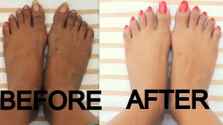 DIY Pedicure At Home / Dark Brown Tan Feet / minniedas
