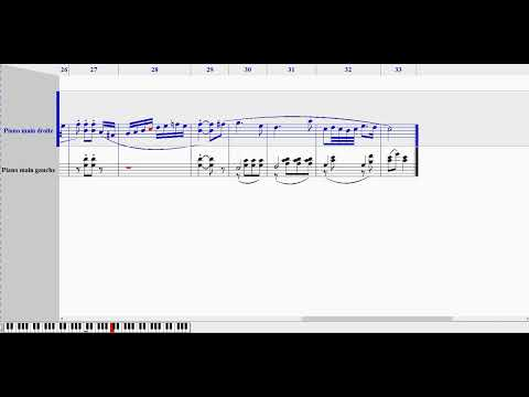 Ludwig von BEETHOVEN - Bagatelle (Noteworthy Composer 2)